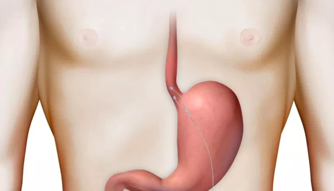 EndoStim1